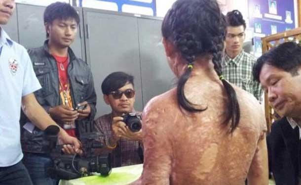 THAILAND : Kidnapped Ethnic Karen Girl Enslaved By Cruel Thai Couple